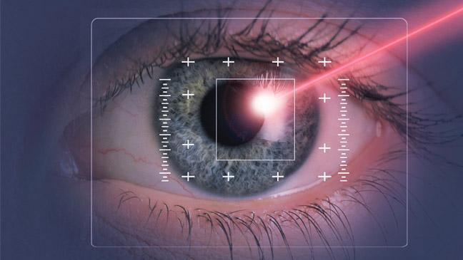 Göz əməliyyatı (eximer lazer) laser eye surgery would you 136392033244003901 140717165239